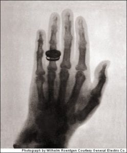 First radiograph taken using x-rays.