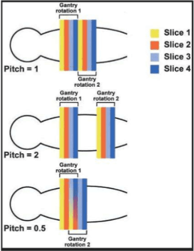 Different imageing pitches influence the speed and quality of a CT scan.