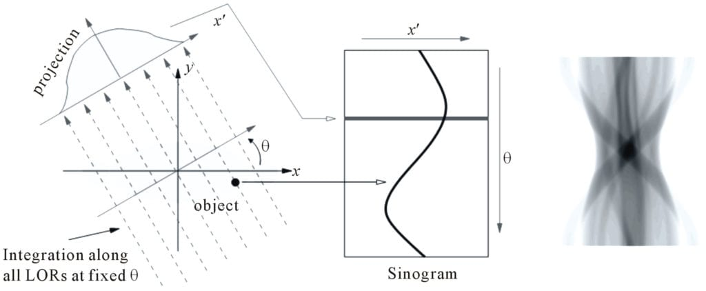 CT sinograms are maps of the projections for each gantry angle.