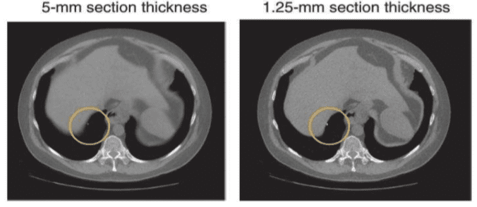 Partial volume artifact (circled in yellow) decreases with decreased voxel size.