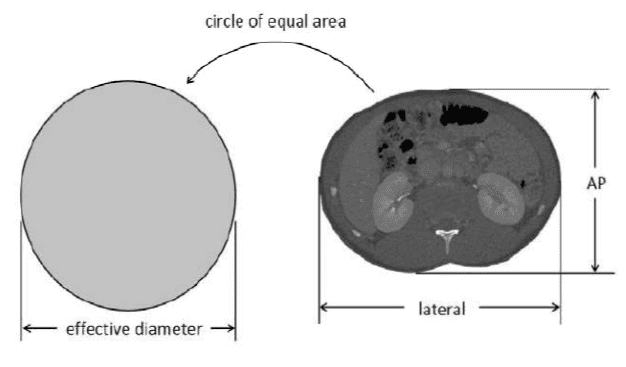 Effective diameter used for computation of SSDE in CT dose measurements.