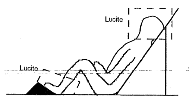 Lateral lying position.