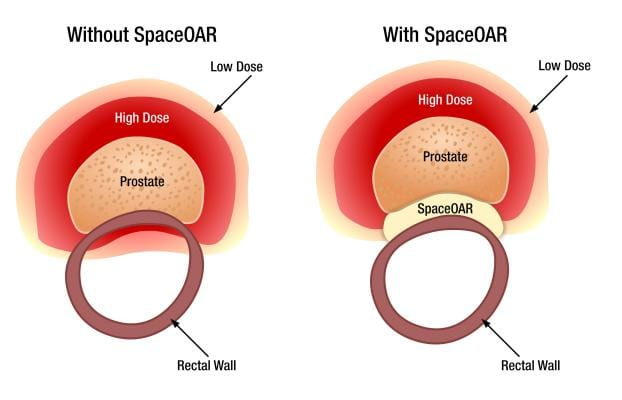 SpaceOAR is a useful tool in the treatment of prostate cancer using high dose rate brachytherapy.