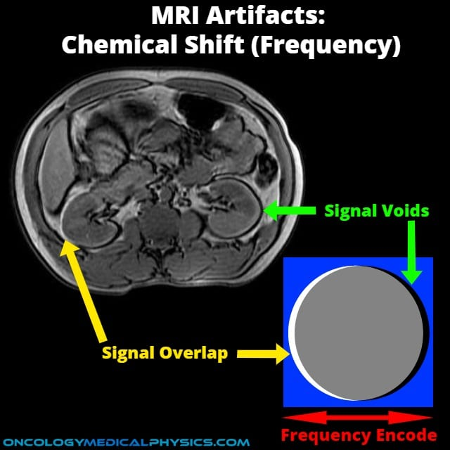 Chemical shift in frequency encode is a commonn MRI artifact.