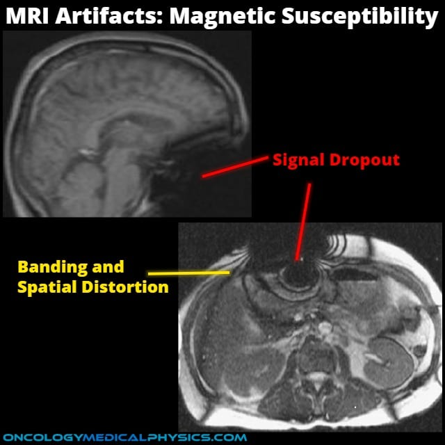 Susceptibility MRI artifact is caused by the inclusion of ferromagnetic materials in the scan.
