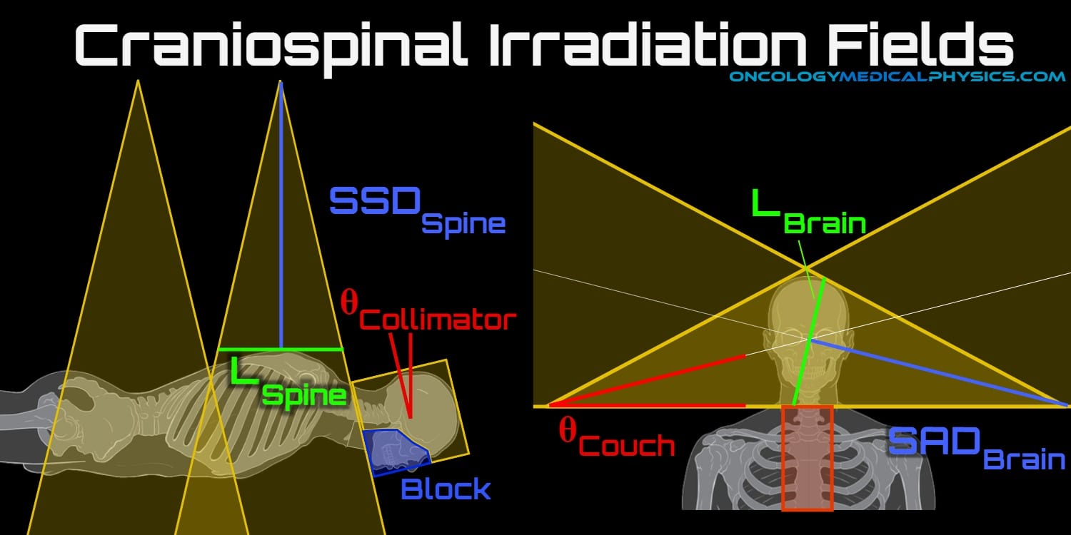 Craniospinal irradiation technique for collimator rotation and couch kick angle.