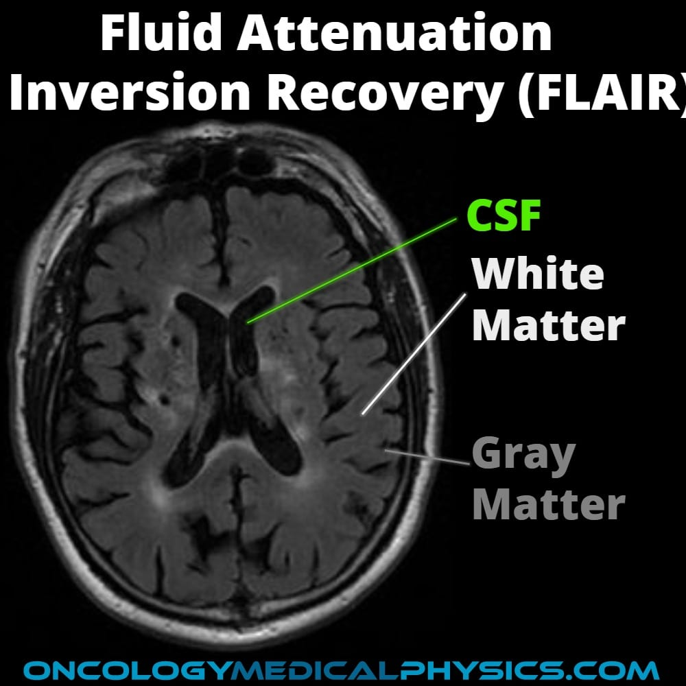 CSF suppression in fluid attenuation inversion recovery FLAIR MRI.