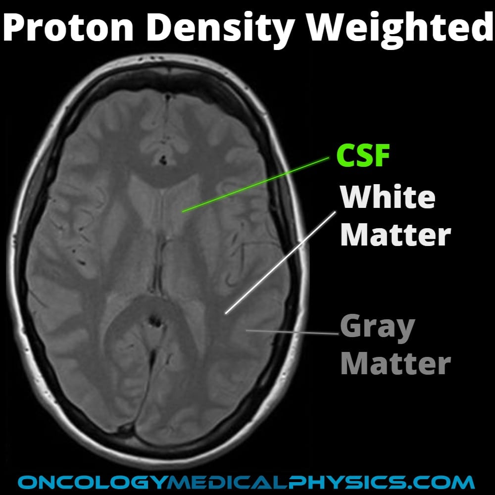 Proton density weighted MRI aids in brain structure visualization.
