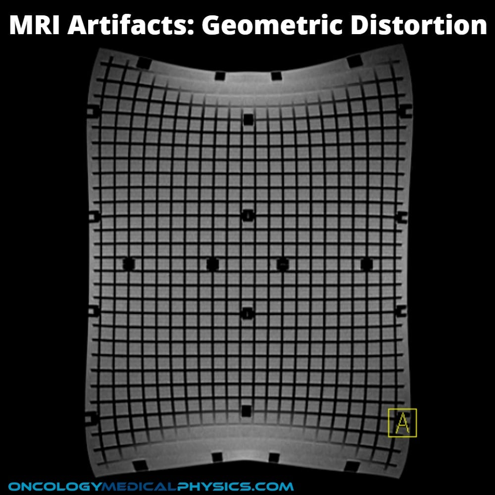 Geometric MRI distortion artifact