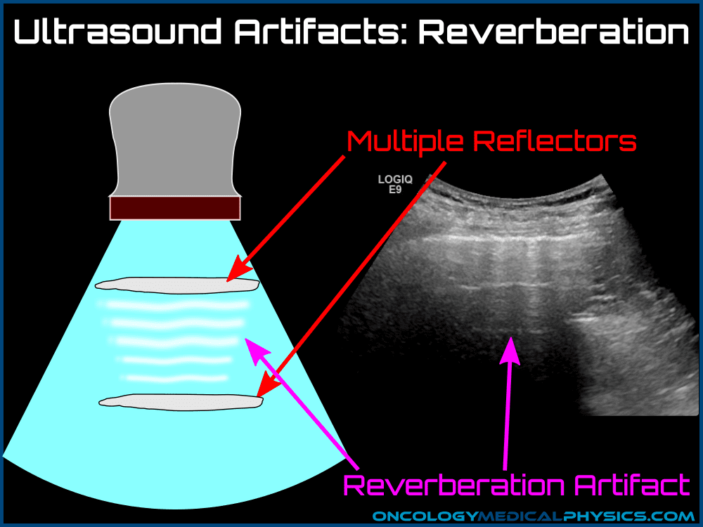 Ultrasound reverberation artifact caused by multiple reflections.