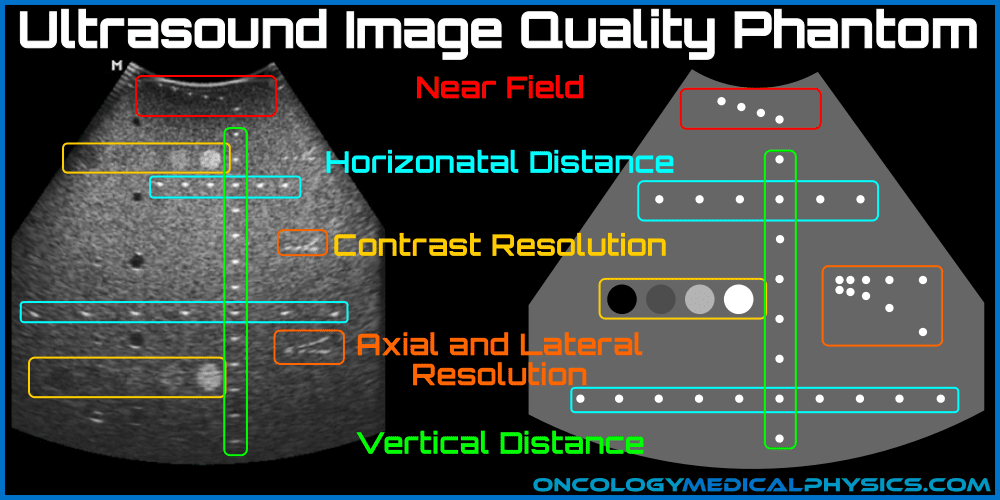 Ultrasound image quality phantom used for QA of contrast and spatial resolution.