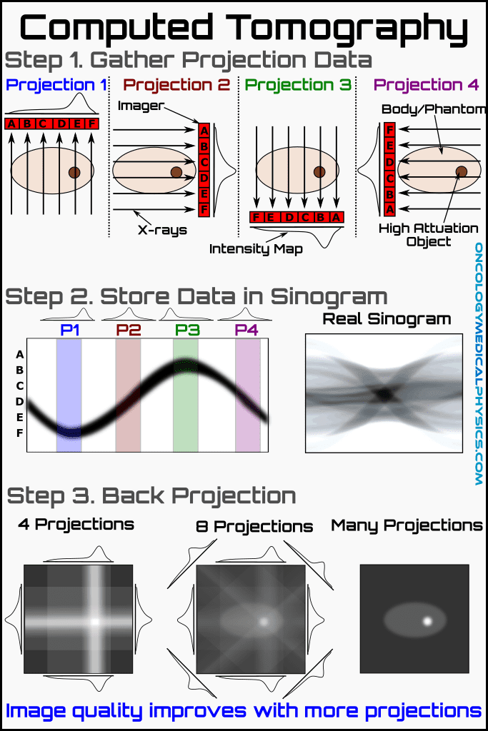 Illustration of CT reconstruction using a sinogram and filtered back projection.