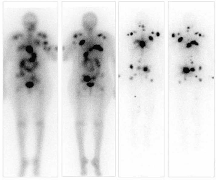 I-123 SPECT imaging showing thyroid papillary carcinoma spread.